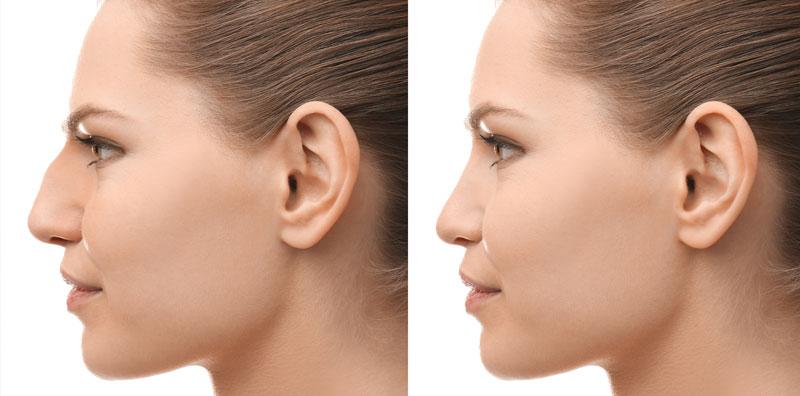 næseoperation kbh